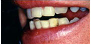 Before instant orthodontics - patient of La Mesa dentist Dr. Jeff Gray near El Cajon