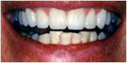 After receiving porcelain veneers in San Diego and El Cajon