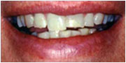 Before receiving dental veneers El Cajon and San Diego