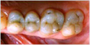 after dental onlays and white fillings La Mesa and San Diego