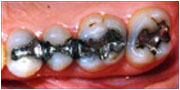 before dental inlays San Diego and El Cajon