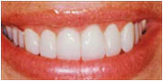 Patient of Dr. Gray in La Mesa after teeth veneers