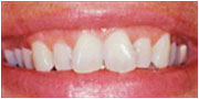 Patient of Dr. Gray in La Mesa before teeth veneers El Cajon