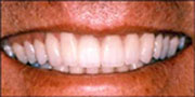 Photo of after the tooth veneer procedure by Dr. Gray of La Mesa, California and El Cajon