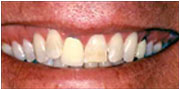 Photo of before the tooth veneer procedure by Dr. Gray of La Mesa, California and San Diego
