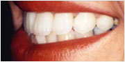 Instant orthodontics after near San Diego
