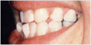 Instant orthodontics before near San Diego
