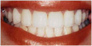Crooked smile after Instant Orthodontics in San Diego