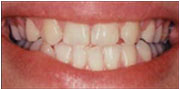 Crooked smile before Instant Orthodontics in San Diego