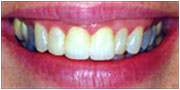 After porcelain veneers in San Diego
