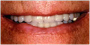 After tooth veneer procedures from La Mesa dentist Dr. Jeff Gray