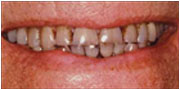 Before porcelain veneers from La Mesa dentist Dr. Jeff Gray San Diego