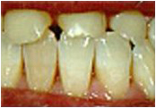 porcelain crowns dentist San Diego and El Cajon
