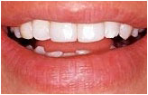 after cosmetic bonding San Diego dentist La Mesa