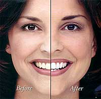 teeth whitening La Mesa dentist El Cajon