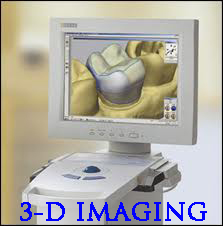 CEREC one visit porcelain crowns in San Diego dentist La Mesa