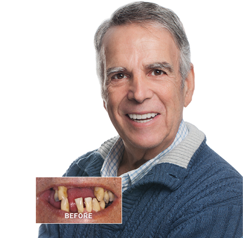 TeethXpress patient testimonial before and after dental implants