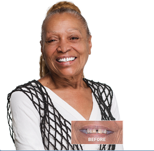 Before and after dental implants in San Diego picture