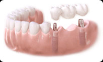 dental bridge San Diego and La Mesa dental implants El Cajon